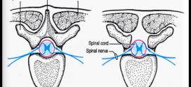 Spina Bifida In Canines
