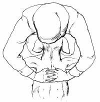 choking 3